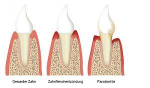 Schematische Darstellung - Gesunder Zahn, Zahnfleischentzündung und Parodontitis