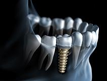 Schematische Darstellung Implantologie